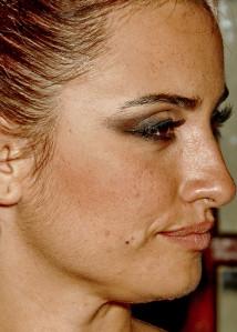 Pilosite visage femme