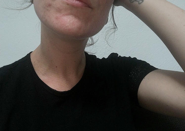 Peau à problèmes, problème d'acné, boutons, struggle, angoisse, acné, aloès, vitamine e, cicatrices d'acné, peau travaillée, acné d'adulte, article, blog le cahier