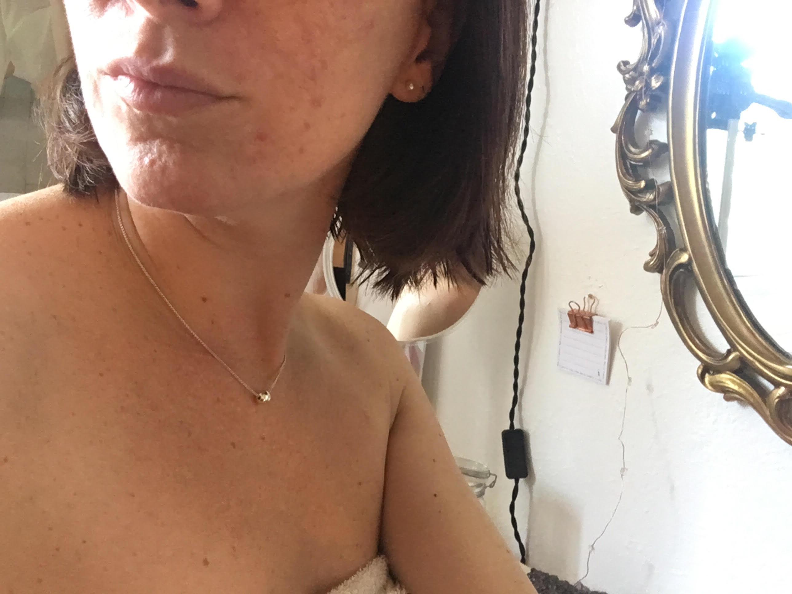 Mediluxe, Peeling 40%, combattre l'acné, peau acnéique, peeling plus de peur que de mal, clinique médico-esthétique, griffintown, processus pour combattre l'acné, tout concernant un processus pour ne plus avoir de l'acné, acné, boutons, peau avec des cicatrices d'acné, blog le cahier, maude sen, article pour peau acnéique