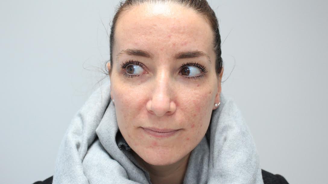 Mediluxe, Peeling 40%, combattre l'acné, peau acnéique, peeling plus de peur que de mal, clinique médico-esthétique, griffintown, processus pour combattre l'acné, tout concernant un processus pour ne plus avoir de l'acné, acné, boutons, peau avec des cicatrices d'acné, blog le cahier, maude sen, article pour peau acnéique, produits luzern