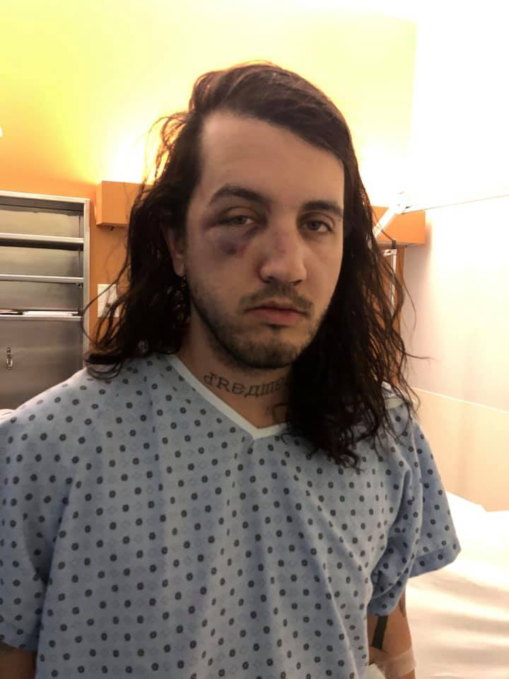 markantoine lynch-boisvert attaque visage hôpital
