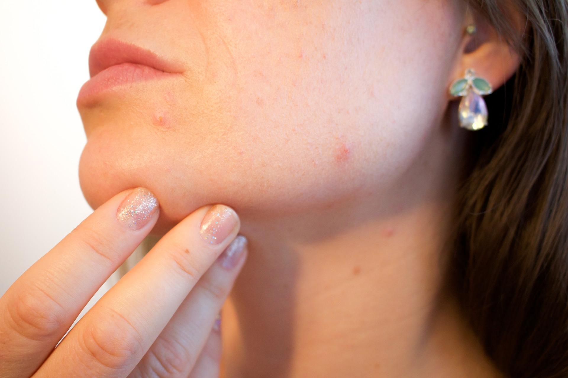 acne femme mains visage
